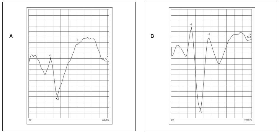 Záznam VEP krivky zaznamenaný z amblyopického oka pred liečbou (a) záznam VEP krivky z vedúcich a zdravých očí (b) – NPN komplex označený číslami 1, 2, 3. Pri amblyopii vidno predĺženie latencií a zníženie amplitúd NPN komplexu