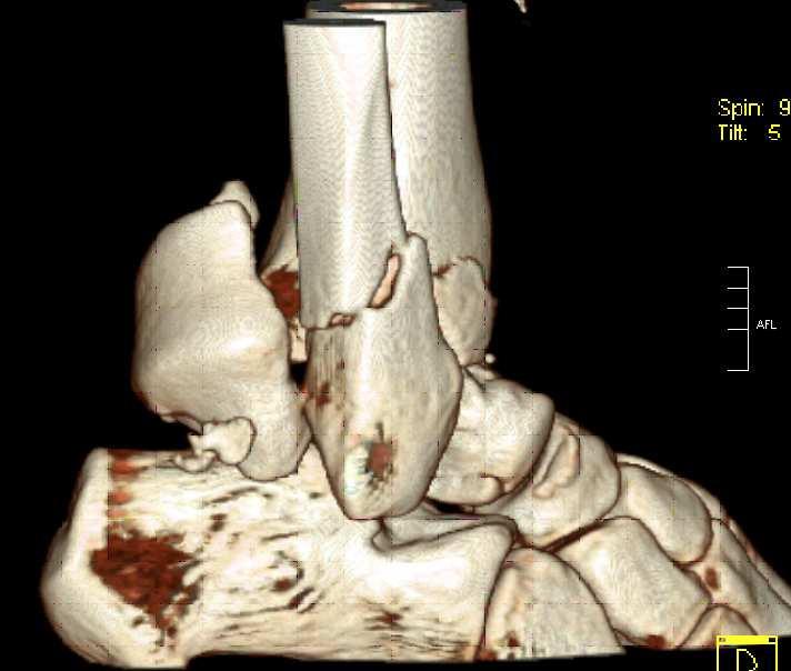 Obr. 1a: Úrazové CT 3D rekonstrukce - bočný pohled