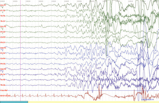 Obr. 1a) Iktální videoEEG: Iniciální iktální zpomalení F-T vpravo s vývojem přes rychlou rytmickou aktivitu do komplexů hrot vlna s maximem ve svodech F8,T4 s dalším šířením homo- i kontralaterálně. Citlivost 70 μV,HP 1 Hz, LP 40 Hz.