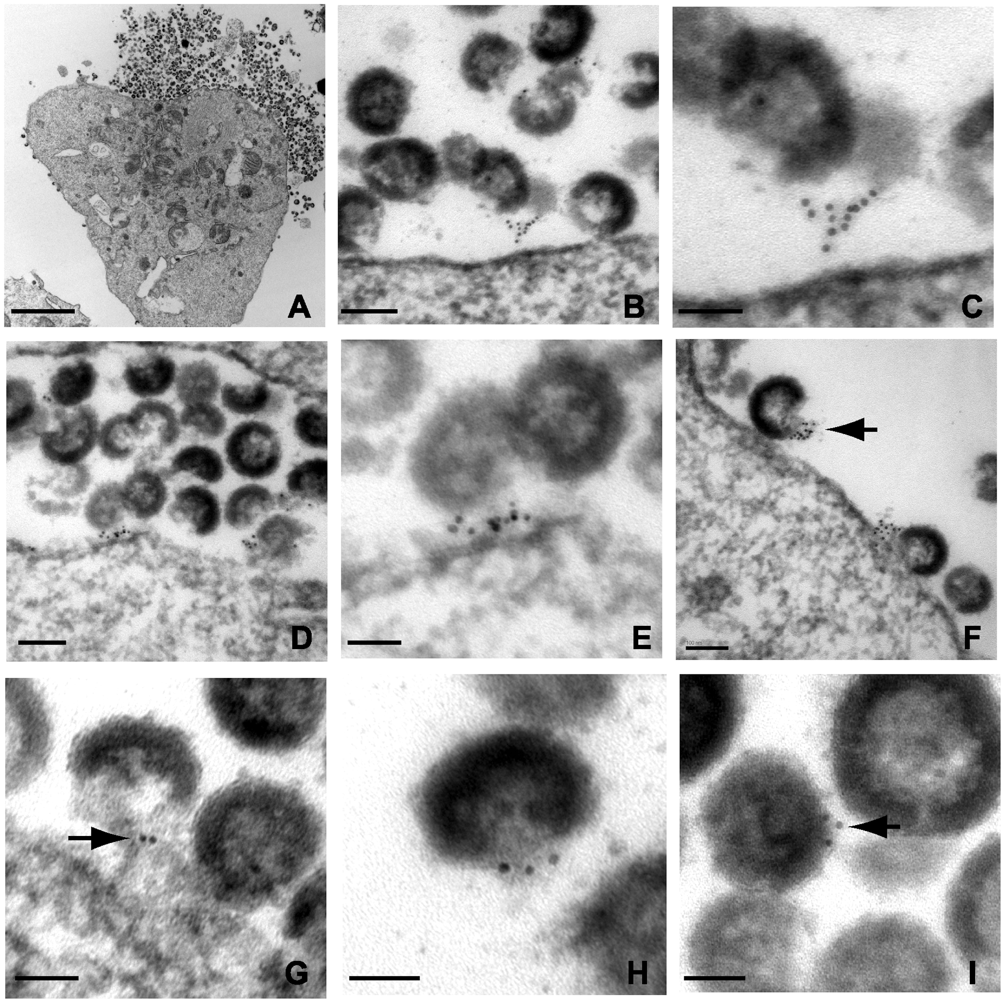 Immunoelectron micrographic analysis of tetherin of NL4.3/Udel-infected A3.01 cells treated with indinavir; labeling at site of particle budding.