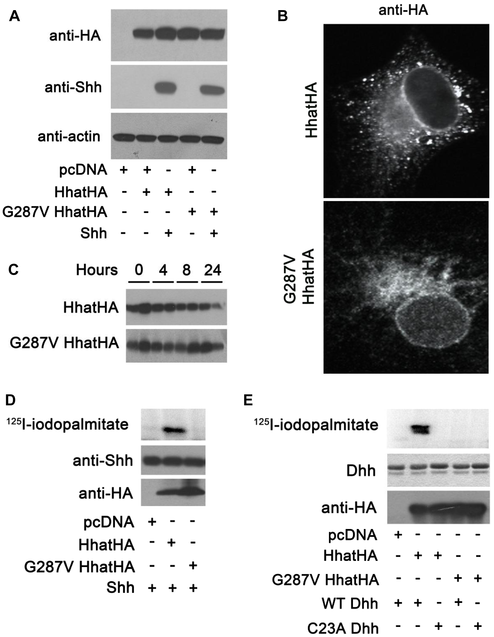 G287V mutation results in loss of HHAT activity.