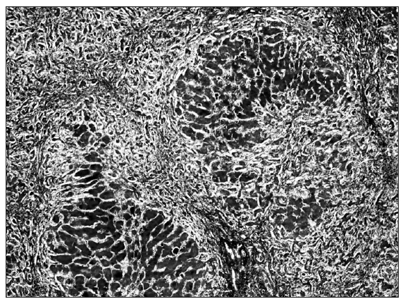 Cirhóza pečene – pseudolobulárna transformácia parenchýmu (Mallory, 40x). Fig. 4. Liver cirrhosis – pseudolobular transformation of parenchyma (Mallory, 40x).