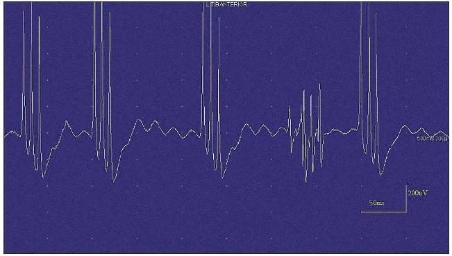 Jehlová EMG – vysokofrekvenční, krátce trvající neuromyotonický výboj.