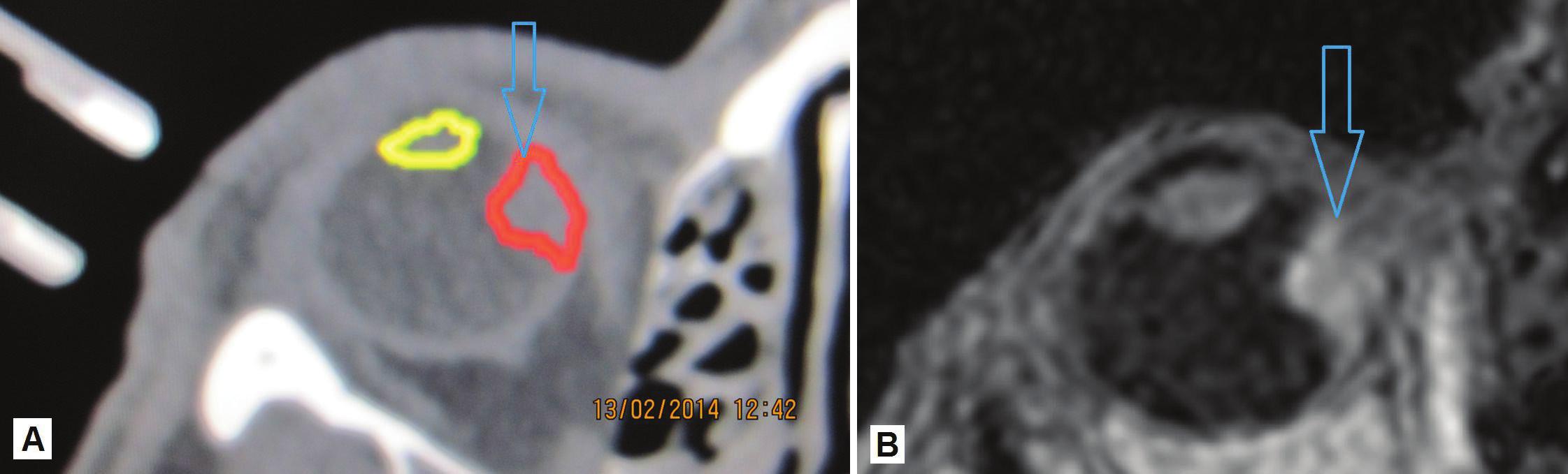 """Zakreslenie nádorového ložiska vychádzajúceho z oblasti corpus ciliare s prerastaním smerom """"dozadu"""" do oblasti choroidy – ložisko červená farba, šošovka žltá farba (A), MR zobrazenie oka s ložiskom (B)"""