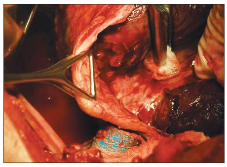 Peroperační snímek dekortikace otevřenou cestou chronického poúrazového empyému