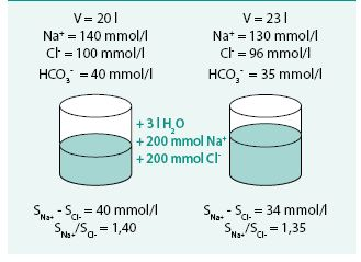 Model retence vody a sodíku (diluční hyponatremie hypervolemická)