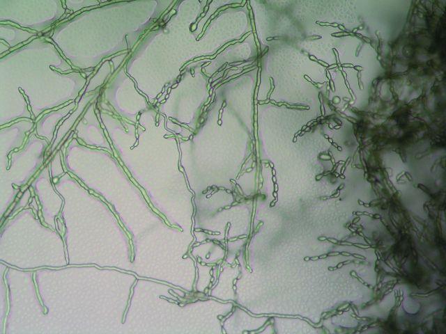 Cladophialophora bantiana – nativní preparát, zvětšení 10 × 20. Fig. 2. Cladophialophora bantiana – the native preparation, magnification 10 × 20.