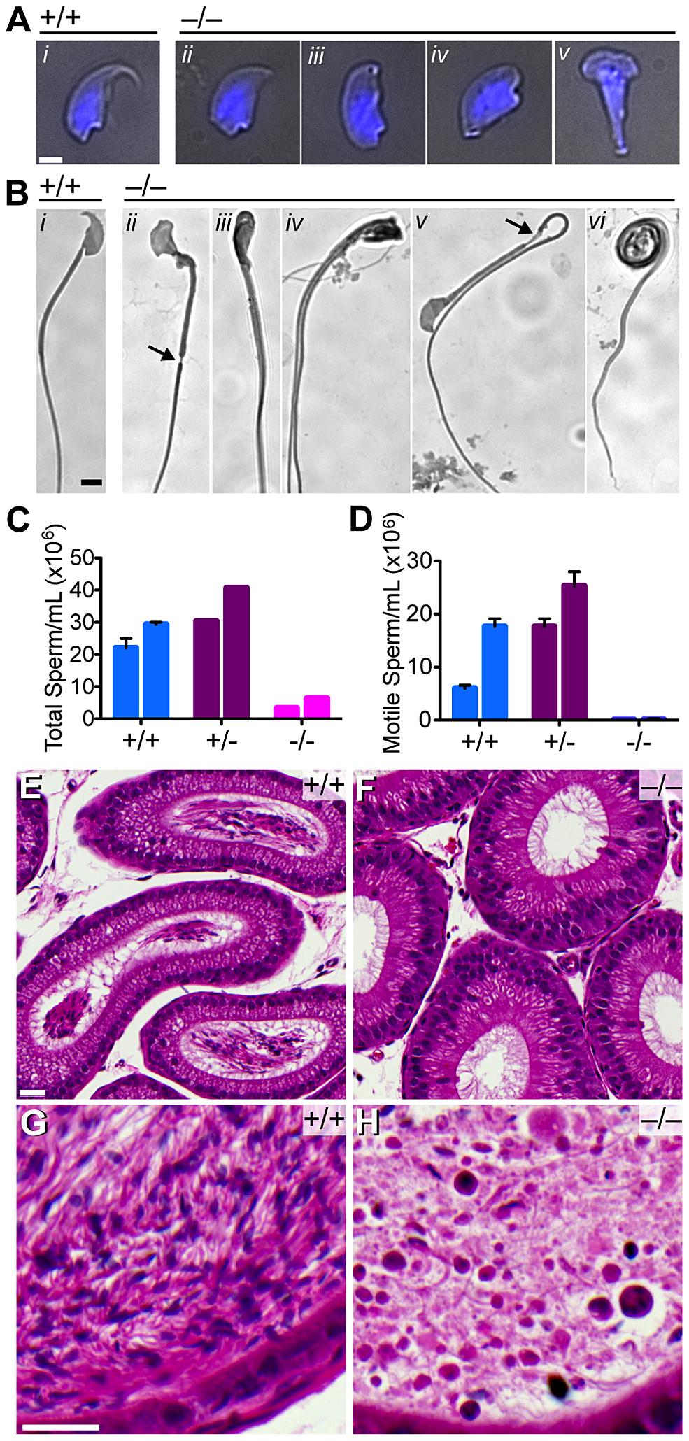 Quantitative and morphological defects of <i>Baz1a<sup>−/−</sup></i> sperm.