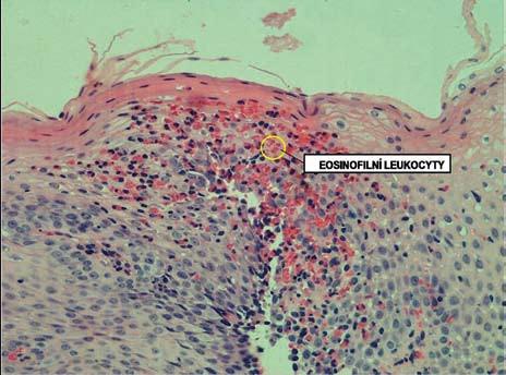 Histologický obraz infiltrace sliznice jícnu eozinofily. Fig. 6. Histological image of esophageal infiltration by eosinophils.