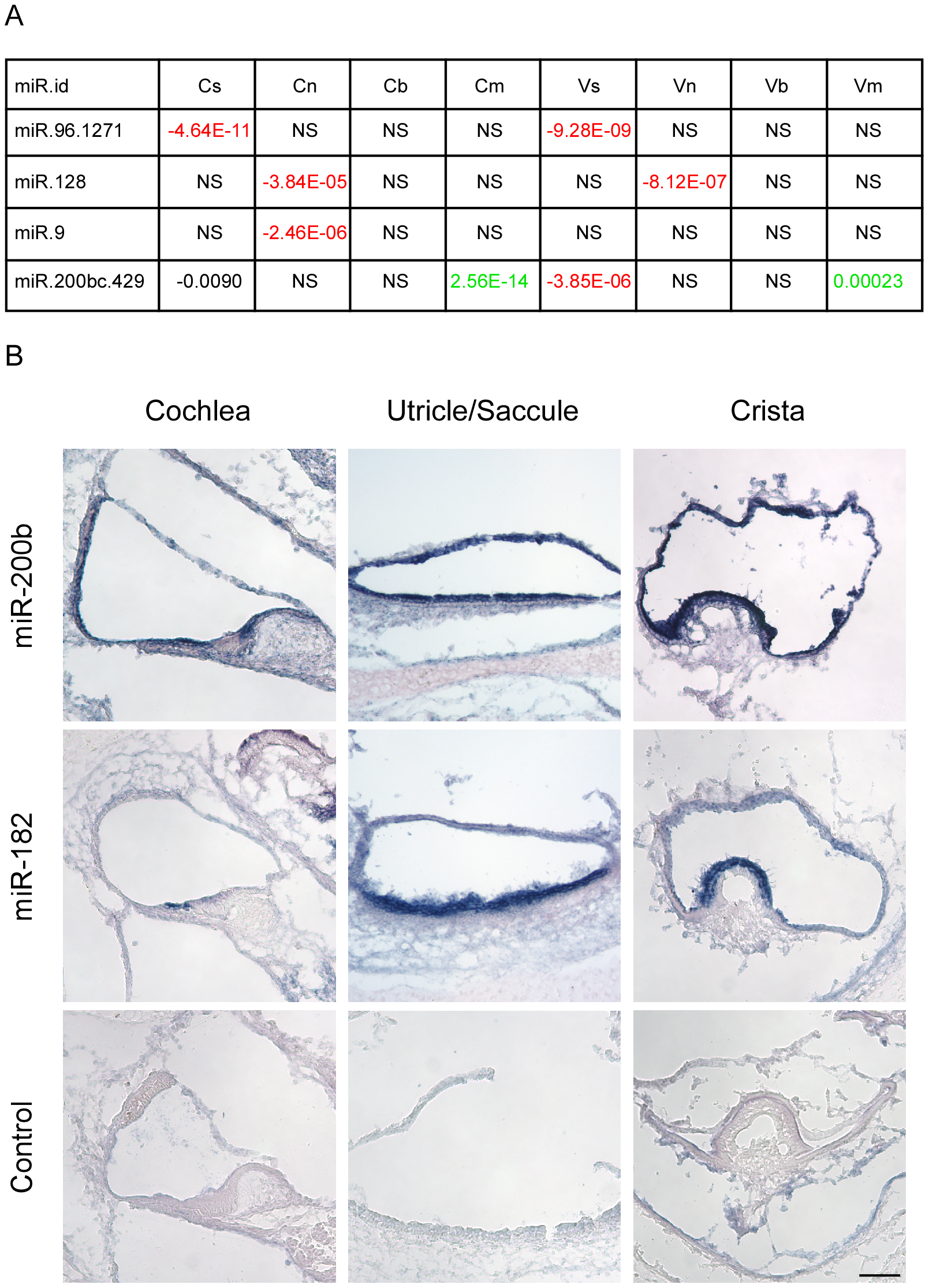 Identification of cell type–specific miRNA in the newborn mouse inner ear.
