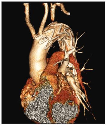 54-ročný muž s aneuryzmatickou dilatáciou anomálne odstupujúcej arteria subelavia dextra (arteria lusoria). Stav po implantácii hrudného stentgraftu do oblasti aortálneho oblúka a dodilatovaní stentgraftu CT angiografia aortálneho oblúka. Fig. 6. A 54-year old male with aneurysmal dilatation of an abnormal arteria subclavia dextra (arteria lusoria). Following thoracic stentgraft implantation into the aortic arch region and completion of the stentgraft dilation. CT angiography of the aortic arch.
