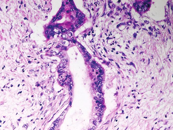 Pankreatický duktální adenokarcinom (PDA). Celulární kondenzace stromatu kolem nepravidelné angulární neoplastické duktální formace PDA. Cytologicky vyjádřené znaky malignity. Barveno hematoxylinem eozinem (zvětšení 200x).