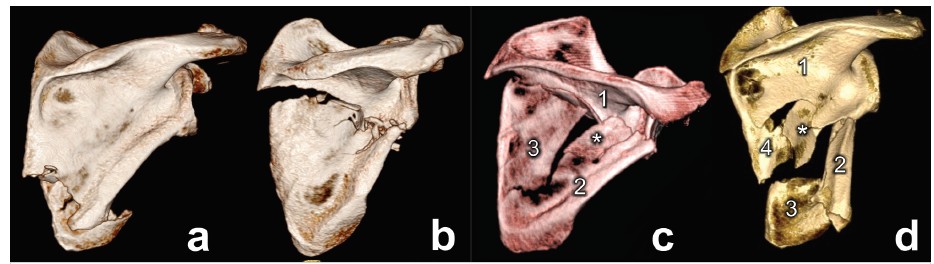 Základní typy zlomenin infraspinátní části těla lopatky. a – zlomenina dolního úhlu, b – dvoufragmentová zlomenina těla, c – třífragmentová zlomenina těla, d – kominutivní zlomenina těla. Fig. 1: Basic types of fractures of infraspinous part of the scapular body a − fracture o finferior angle, b – two-part fracture of body, c − three-part fracture of body, d – comminuted fracture of body.