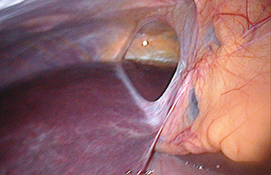 Defekt v ligamentum falciforme hepatis (peroperační snímek) Fig. 2: The falciform ligament defect (perioperative photo)
