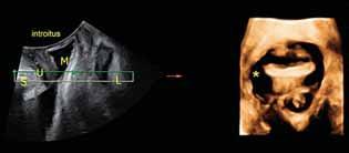4D ultrazvukové vyšetření prolapsu: Levá část: Sagitální řez S – symfýza, L – levator, U – uretra, M měchýř. Pravá část: axiální řez levatorového hiatu s pravostrannou avulzí levatoru označena hvezdičkou