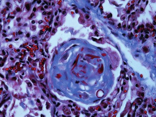 """Pľúcne """"hassalloidné"""" teliesko s fibrotizáciou a zvyškami bunkového komponentu (Massonov modrý trichróm, 240x)."""