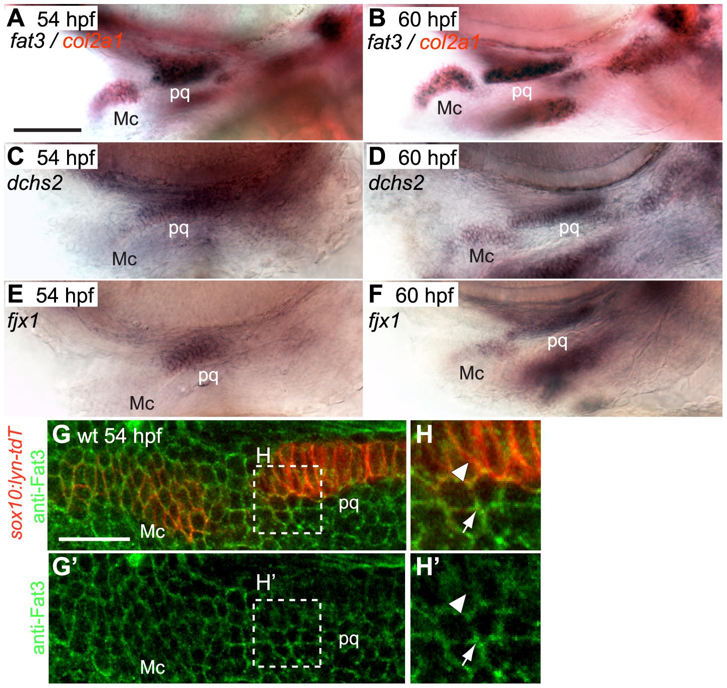 <i>fat3</i>, <i>dchs2</i> and <i>fjx1</i> are expressed in cartilage precursors.