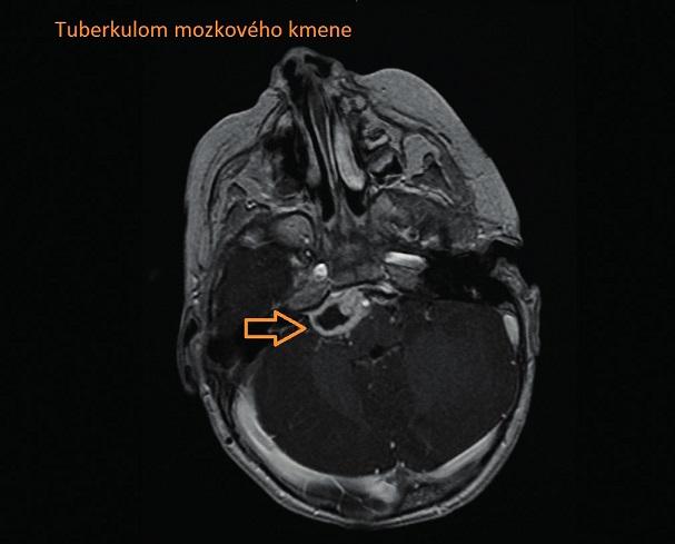 Tuberkulom mozkového kmene. Fig. 3. Brain-stem tuberculoma.