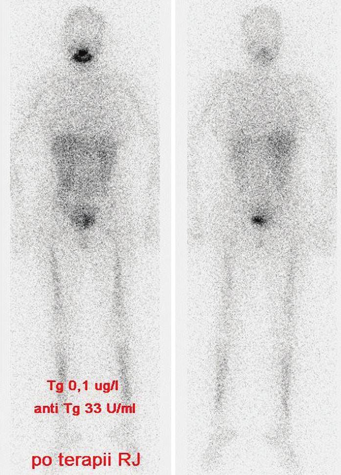 Stejný pacient jako na obr. 1 a 2, vymizení plicních metastáz.  Vysvětlivky: stav po terapii RJ pro plicní metastázy, postterapeutický scintigram - negativní nález při celotělové scintigrafii, hladina Tg 0,1 μg/l, anti-Tg 33 U/ml (pokles hodnot).