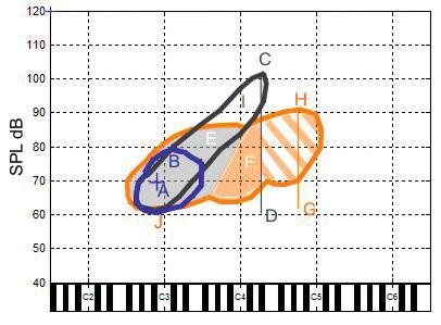 Průměrné mužské hlasové pole naměřené v naší studii. Modrá kontura ohraničuje habituální hlas, černá hlasové pole při volání, oranžová ohraničuje celkové (zpěvní) hlasové pole. Na x-ové ose je znázorněná tónová výška dle americké notaci C2-C6 odpovídají velkému C až c´´´. Písmeny jsou vyznačeny významné body hlasových polí jak jsou uvedeny v závěru studie: A – poloha průměrné výšky a intenzity habituálního hlasu, B – hodnota maximální intenzity habituálního hlasu, C – maximální intenzita při volání, D – hodnota minimální intenzity řečových úkolů, úsečka C-D – celkový dynamický rozsah řečových úkolů (habituálního hlasu a volání), E – šedivá plocha celkového zpěvního hlasového pole tvořená v modálním rejstříku, F – oranžová plocha zpěvného hlasového pole tvořená ve falzetovém rejstříku (šrafovaná oranžová plocha - plocha zpěvního hlasového pole nacházející se nad maximální výškou dosaženou při volání), G, H – hodnoty minimální a maximální intenzity zpěvního hlasového pole, úsečka G-H – dynamický rozsah VRP, I – kritický bod na křivkách maximálních SPL pro zpěvní VRP i volání (nachází se cca 1 oktávu nad polohou mluvního hlasu a je nejvíce citlivý na poruchu hlasu), J –nejtišší intenzita v oblasti výšky habituálního hlasu.