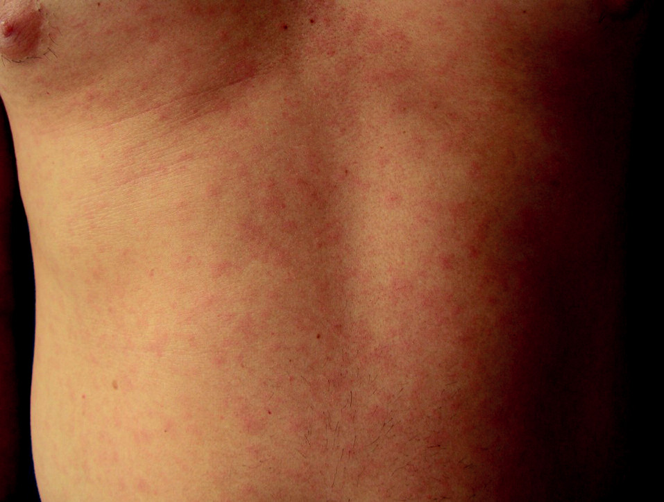 Exantémy syfilis II bývají uHIV+ častější.