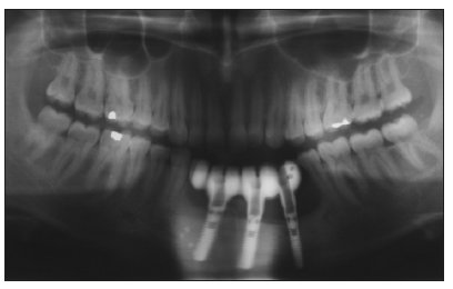Panoramic radiograph after reconstruction