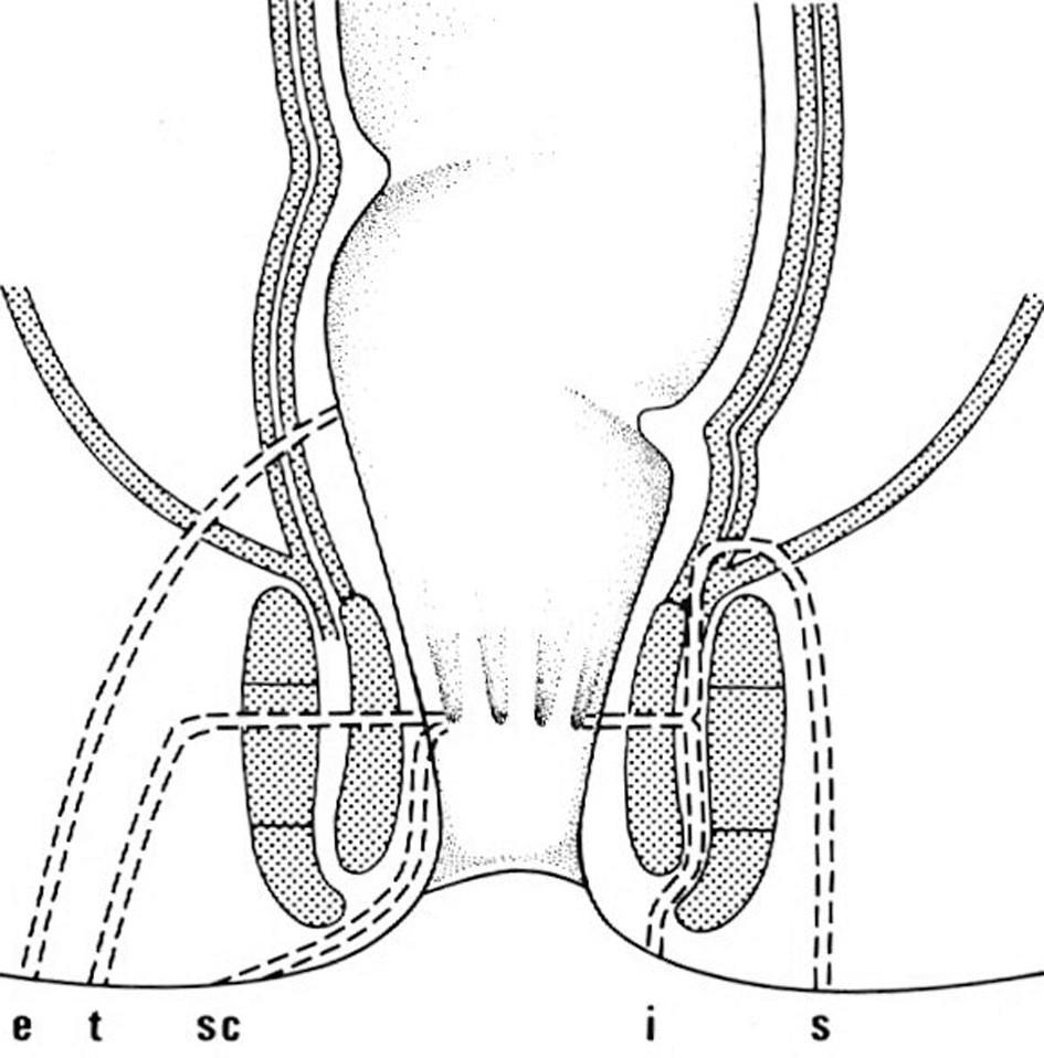 Typy perianálních píštělí e – extrasfinkterické, t – transsfinkteriské, sc – submukózní, i – intersfinkterické, s – suprasfinktrické Fig. 2: Types of perianal fistulas e – extrasphincteral, t – transsphincteric, sc – submucosal, i – intersphincteric, s – suprasphincteral