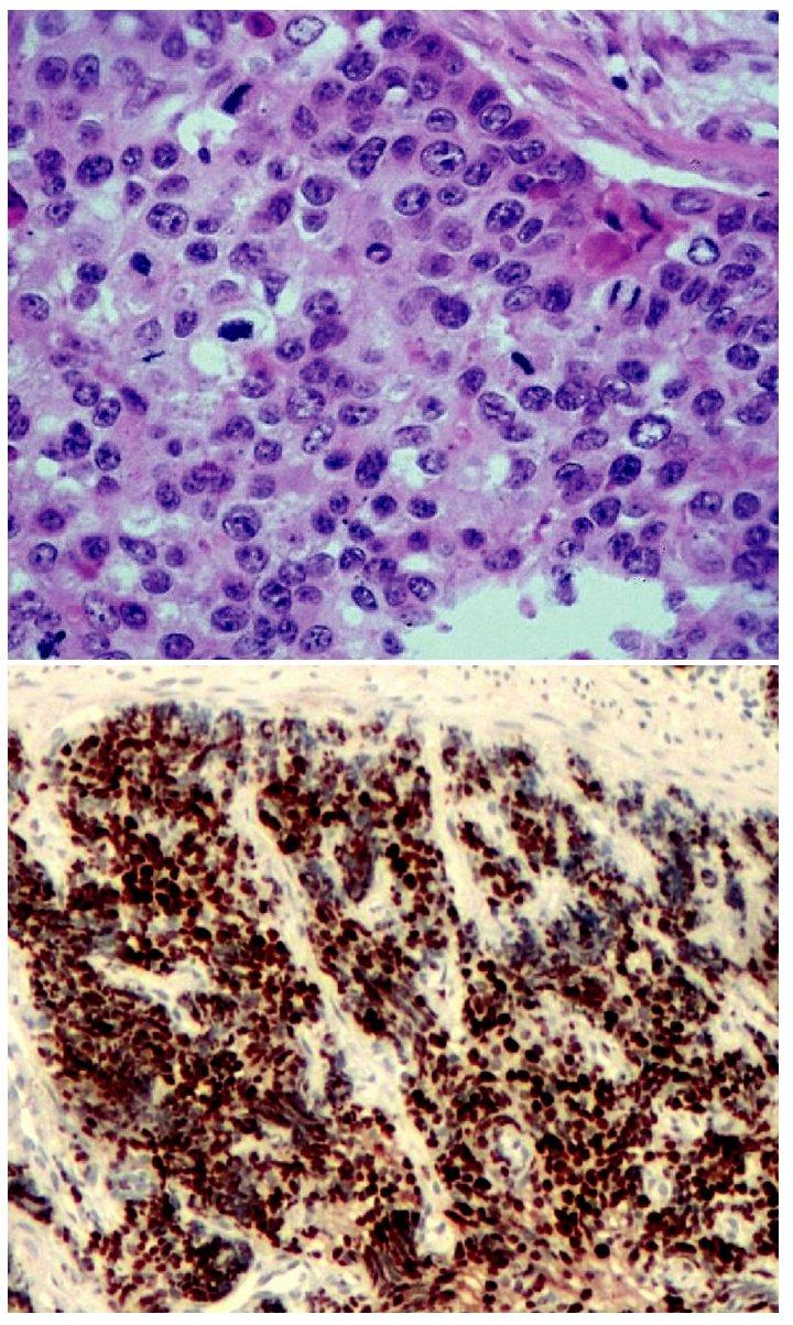 Špatně diferencovaný neuroendokrinní karcinom. Solidně uspořádaný nádor vykazující vysokou mitotickou aktivitu. H&E, 400krát (A), převážná většina nádorových buněk vykazuje jadernou pozitivitu Ki-67, nález odpovídá G3. 100krát (B)
