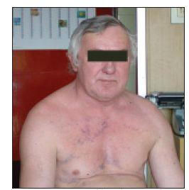 Pacient s klinicky manifestovaným syndromem horní duté žíly.
