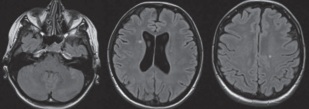 Axiálne FLAIR – diseminácia v priestore: 25-ročný pacient s optickou neuritídou, prítomné štyri lézie v typických lokalitách: infratentoriálne vľavo, juxtakortikálne a periventrikulárne.