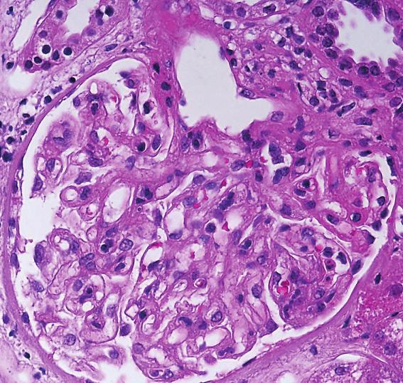 IgA-dominantní postinfekční GN. Glomerulus s akcentovaným mesangiem a segmentální endokapilární proliferací (šipky, objektiv 40x, HE).