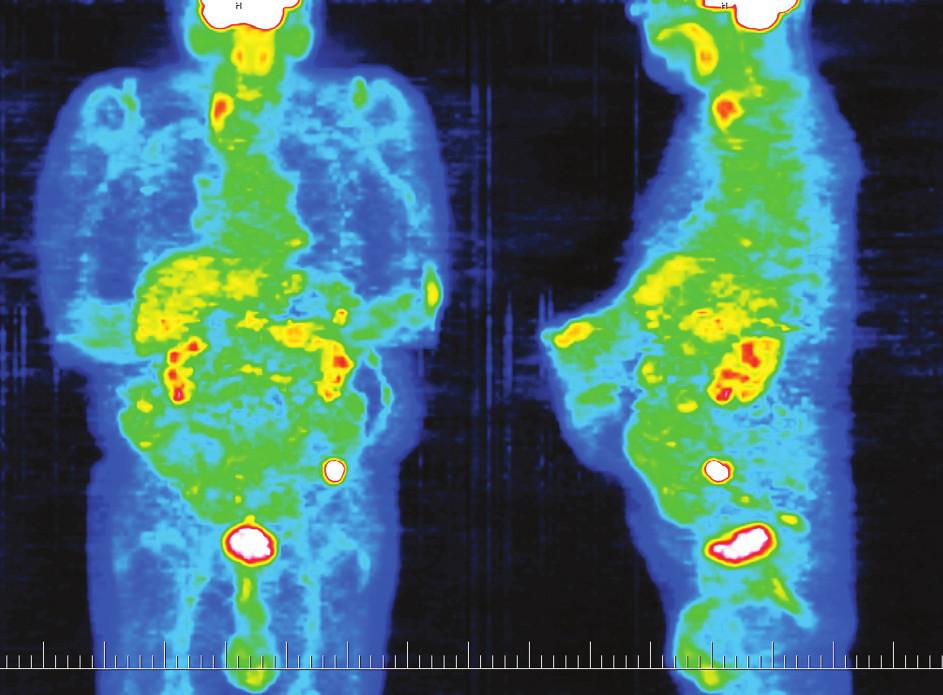 PET zobrazující ložisko viabilní nádorové tkáně v levém hypogastriu Fig. 3. PET depicting a focus of viable tumor tissue in the left hypogastrium