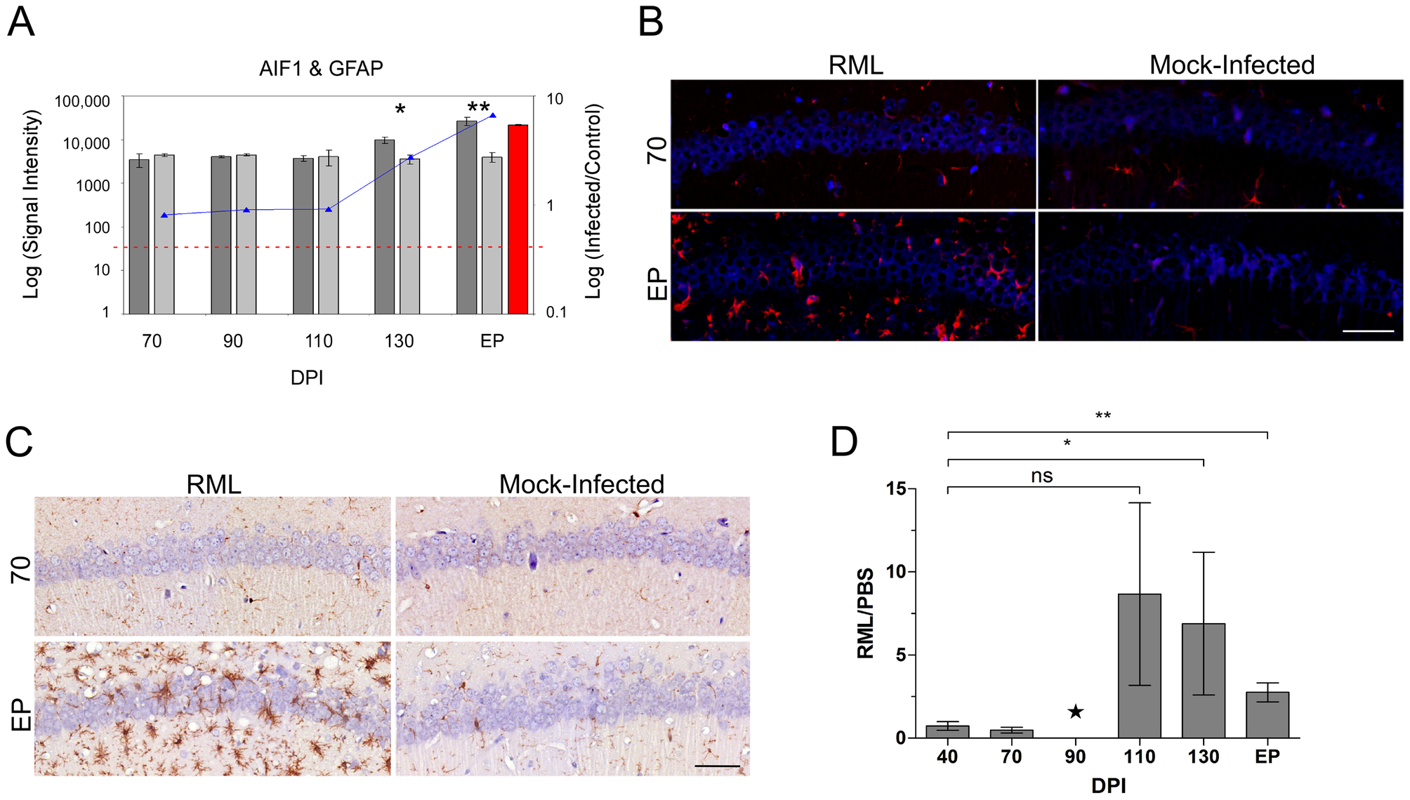 The distribution of resident immune cells in the CA1 hippocampal region of both control and prion infected mice.