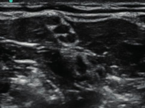 Okrouhlý příčný řez kořenů a kmenů brachiálního plexu v interskalenické oblasti Jsou typicky hypoechogenní s hyperechogenním okolím.