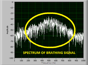 Fig. 5: Spectrum of the acoustic signal: a) phase of the air flow – breathing, b) the air does not flow