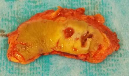 Excidovaná tkáň Fig. 2. The excised tissue