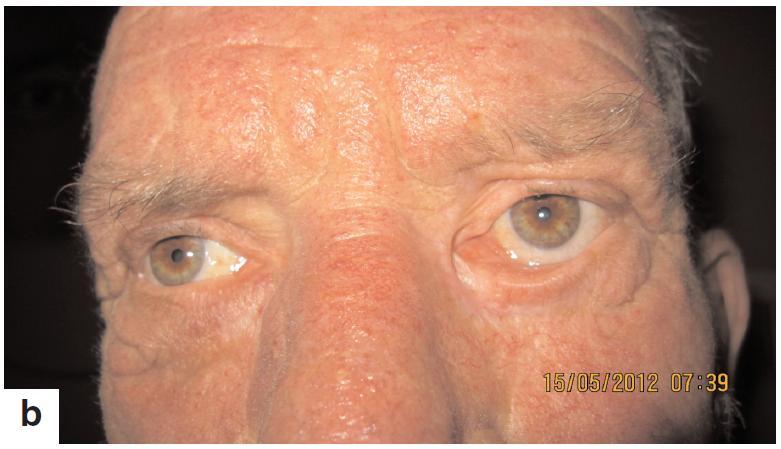Pacient s recidivujúcim bazaliómom mediálneho kútika ľavého oka pred liečbou – november 2010 po liečbe je bez recidívy, pretrvávajúce ektropium – máj 2012