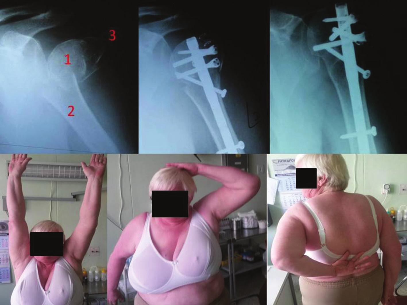 Troj-časťová zlomenina proximálneho humeru typu Neer IV riešená intramedulárne pomocou klinca Multilock (vľavo). Rok po úraze (vpravo) a funkčný výsledok po roku (dole) Fig. 2: Three-part proximal humerus fracture type Neer IV treated using the intermedullary nail (Multilock) (left). One year from injury (right); and functional result after one year (down).