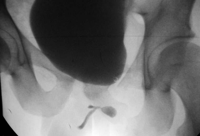 Obr. 2a, 2b. Distrakční defekt v membranózní uretře s únikem kontrastní látky při retrográdním plnění, hrdlo se při cystografii neotevřelo.