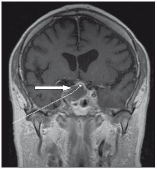 Magnetická rezonance. T1 vážený obraz, koronární řez po kontrastu před operací. Plná šipka ukazuje na prokrvácený adenom, tečkovaná na zvednuté chiazma. Na pravé straně je patrno šíření do kavernózního sinu.