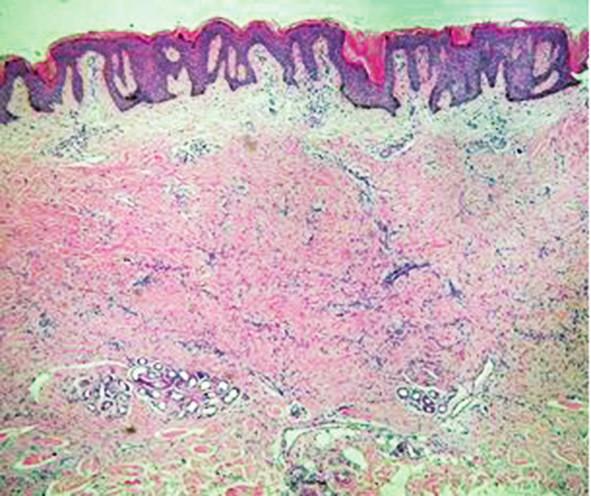 Pod hyperplastickou, hyperpigmentovanou epidermis je v retikulárním koriu patrný málo buněčný fibrózní tumor sahající k potním žlázám (HE, zvětšení 40x)