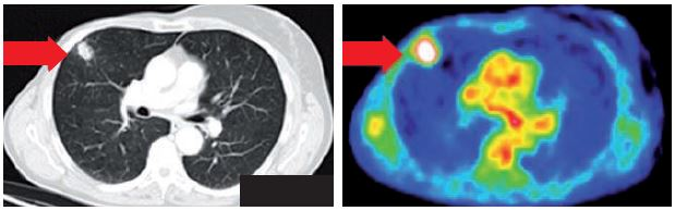 Obr. 1. PET/CT ložisko ve středním laloku.