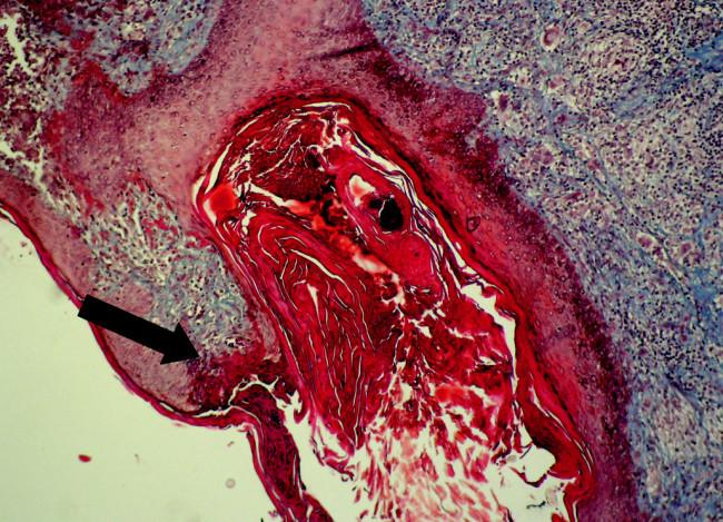 """Výrazne dilatovaný folikul s nepravidelným epitelom. Perforácia hornej infundibulárnej časti folikulu /šípka/. Ústie je vyplnené orto- aj parakeratotickým keratínom a celulárnou debris. Na povrchu ruptovaného epitelu je parakeratotická """"zátka"""".V okolí je chronický zápalový infiltrát s obrovskobunkovou reakciou v derme (Massonov trichróm, 120-krát)"""
