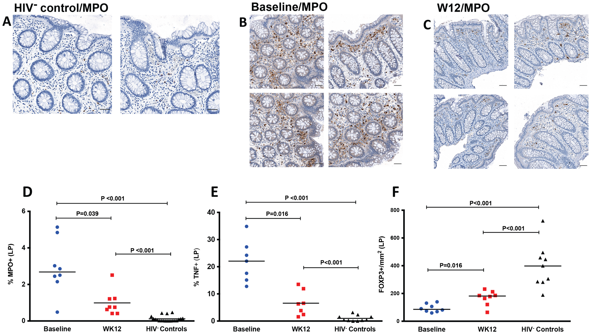 Decreased neutrophil infiltration by myeloperoxidase (MPO) staining, decreased TNF and increased FOXP3 in LP at week 12 after r-hIL-7 administration.