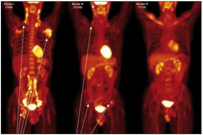PET-CT u muže narozeného 1973 s průběhem nemoci podobným lymfomu a s plicním postižením. Na prvním obrázku vlevo vyšetření před léčbou, je velmi dobře zřetelná patologicky zvýšená aktivita v oblasti krčních, axilárních, ilických a tříselných uzlin, ale nebylo zřetelné poškození kostí. Na prostředním obrázku, který byl proveden v době relapsu dva měsíce po ukončení léčby 2-chlorodeoxyadenosinem, je zřetelná patologicky zvýšená aktivita v oblasti krčních uzlin a dále v oblasti lopat kosti kyčelní, kde na low dose CT byla prokázána osteolytická ložiska. Na obrázku vpravo je vyhodnocení účinnosti léčby po dvou cyklech CHOEP a zde není zřetelná žádná patologická akumulace flurodeoxyglukózy.