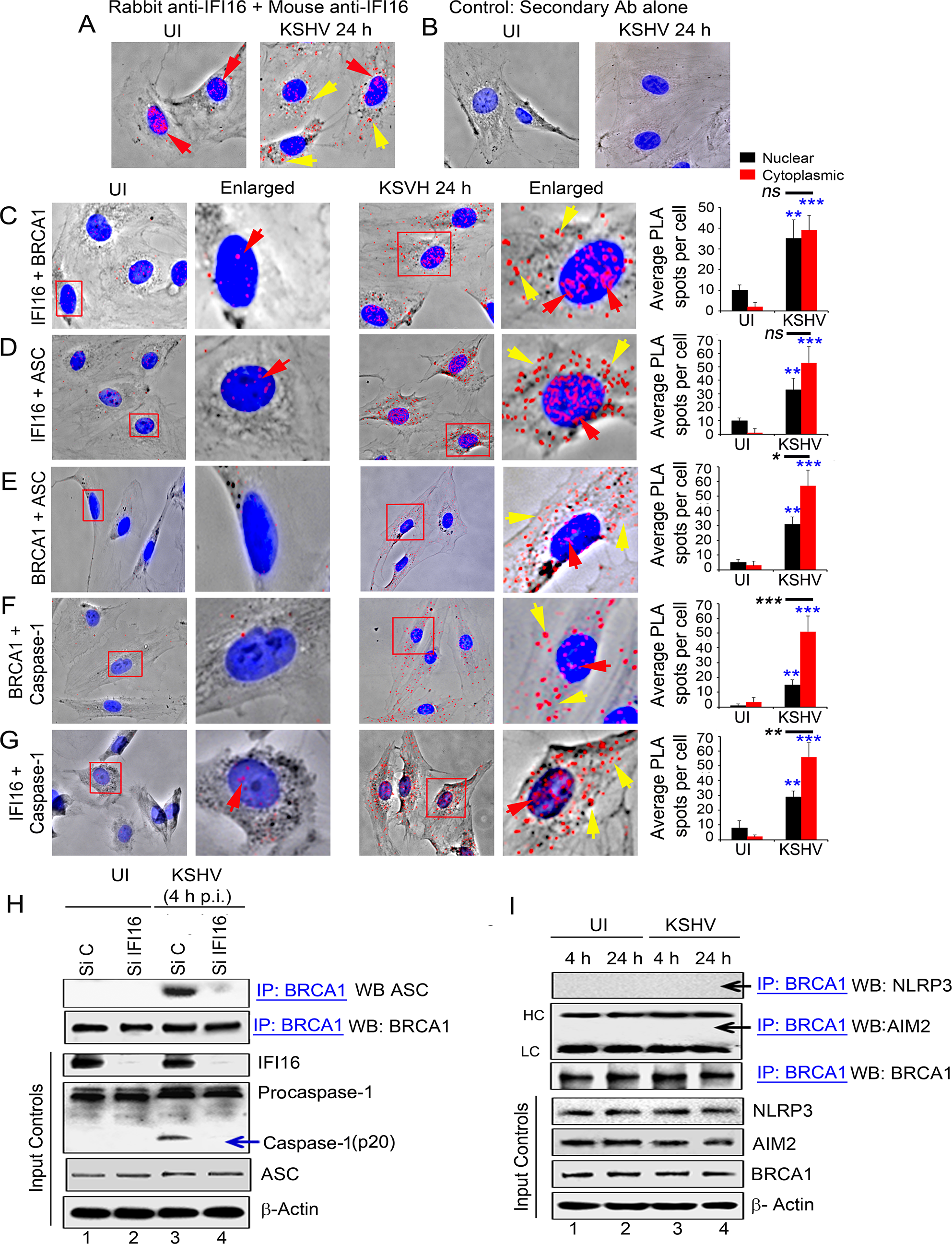 PLA and knockdown studies demonstrating specificity of BRCA1 interactions with IFI16-inflammasome components and relocalization to the cytoplasm during <i>de novo</i> KSHV infection.