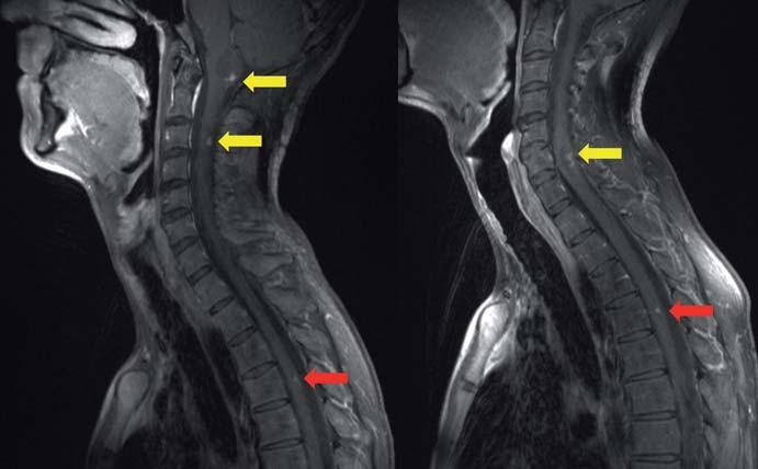 MR, T1 vážený obraz s kontrastem v sagitální rovině. Mnohočetných hemangioblastomů mozkového kmene a míchy u 29letého muže; žluté šipky ukazují cystickou formu hemangioblastomu, červené šipky ukazují solidní formu hemangioblastomu