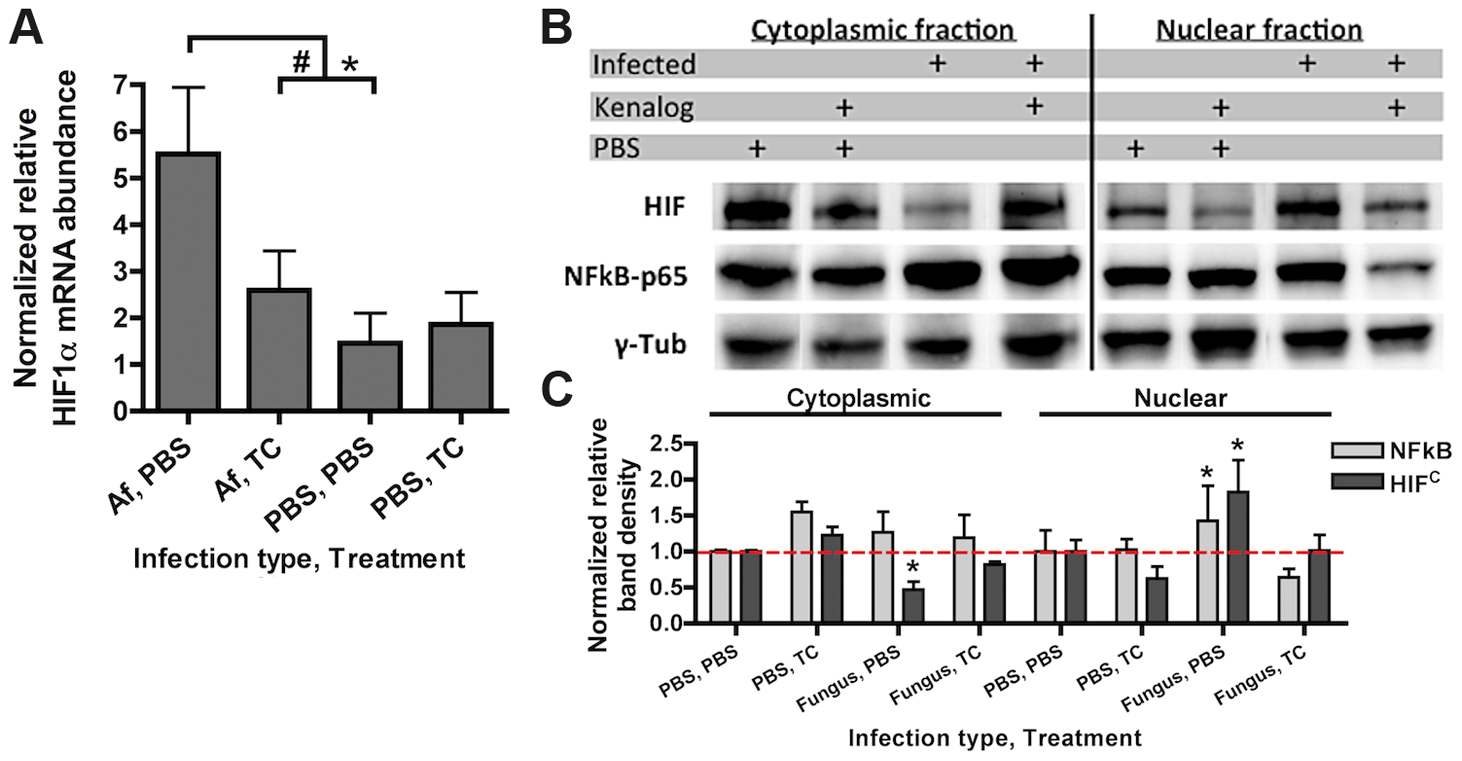 Steroid treatment reduces HIF mRNA abundance and protein nuclear localization induced by <i>A. fumigatus</i> infection.