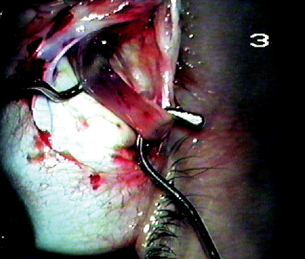 Izolovaný dolní šikmý sval