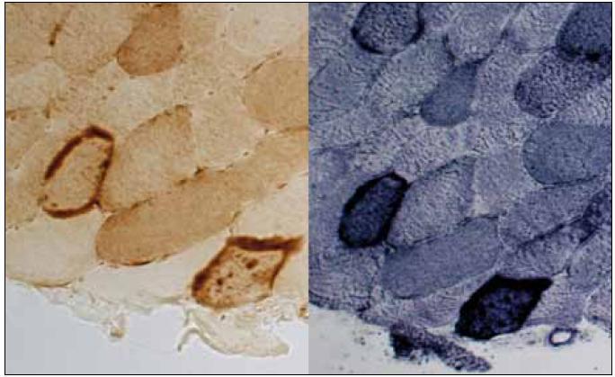 COX-pozitivní RRF – vlevo průkaz COX, vpravo reakce na SDH. Původní zvětšení 400×.